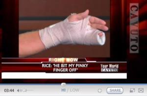 Healthcare Protestor Bites Finger Off (Cavuto interview)
